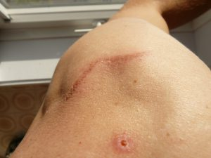 Wer Narben entfernen möchte muss darauf achten um was für eine Art von Narbe es sich dabei handelt.