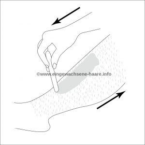 Sugaring Anleitung Schritt 2: Die Zuckerpaste wird mit der Wuchsrichtung aufgetragen (und gegen die Wuchsrichtung abgezogen)