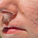Pickel und Aknenarben sind vergleichbar mit Narben von eingewachsenen Haaren