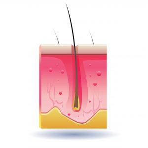 Dunkle Flecken auf der Haut entstehen bei Verletzungen und Entzündungen in den tieferen Schichten der Haut.