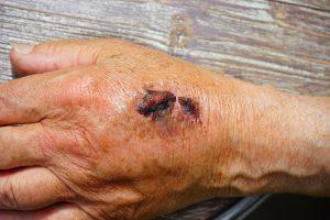 Offene Wunden sollten nur vom Arzt behandelt werden. Sobald die Wunde geschlossen wird kann damit begonnen werden die Narbe zu behandeln.